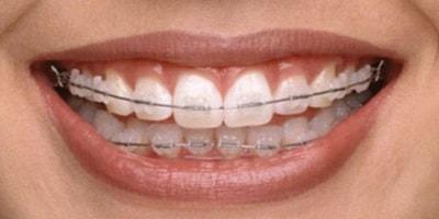 ortodoncia dental en coslada