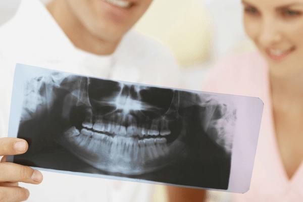 Por qué salen manchas blancas en los dientes