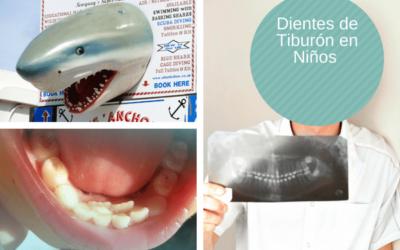 ¿Qué son dientes de tiburón en Niños?