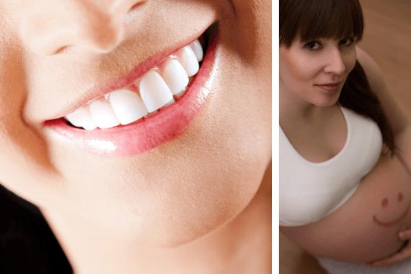 Cuidado de encías y dientes durante el embarazo