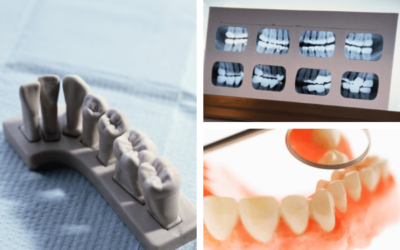 Tipos de implantes dentales