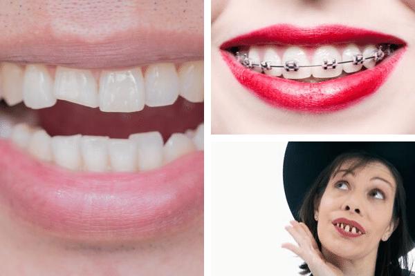 corregir dientes