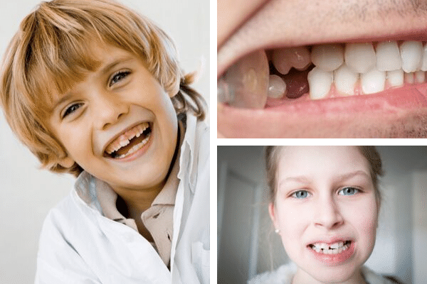 Para corregir dientes ¿ortodoncia o carillas dentales?